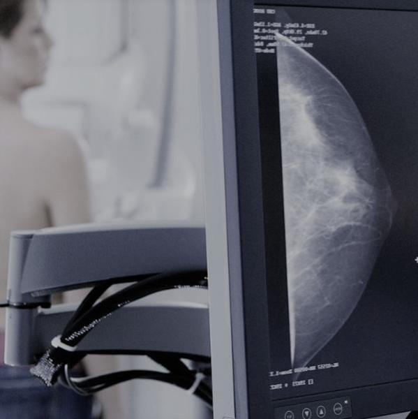 Картинка анонса статьи Диагностика рака груди. Ответы на шесть главных вопросов