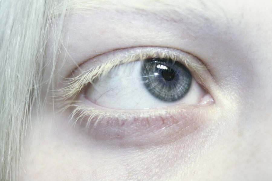 Картинка анонса статьи Альбинизм глаз: что это?