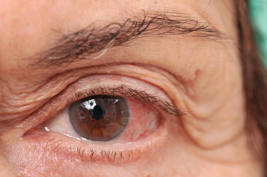 атрофия зрительного нерва у взрослых