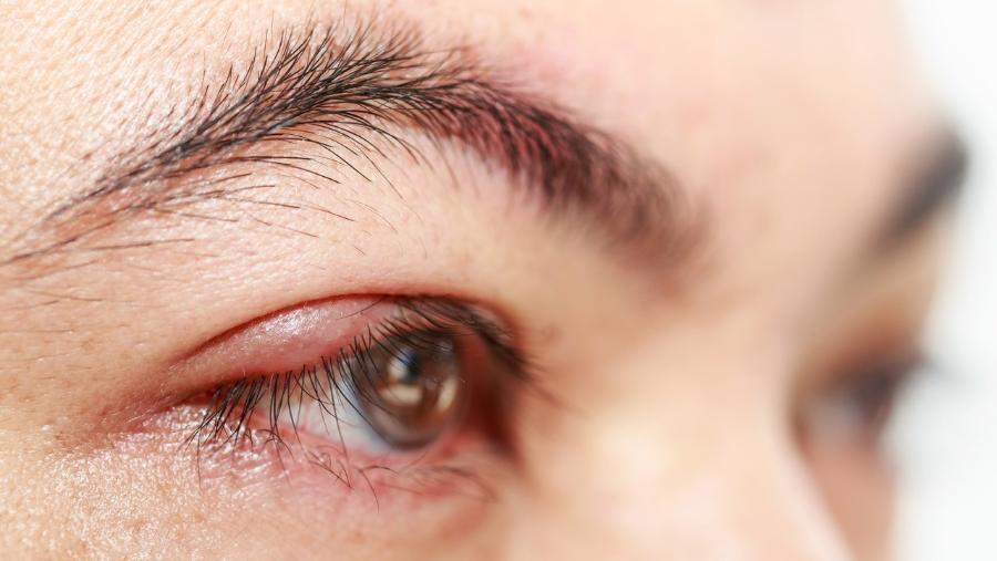 симптомы блефарита у взрослых