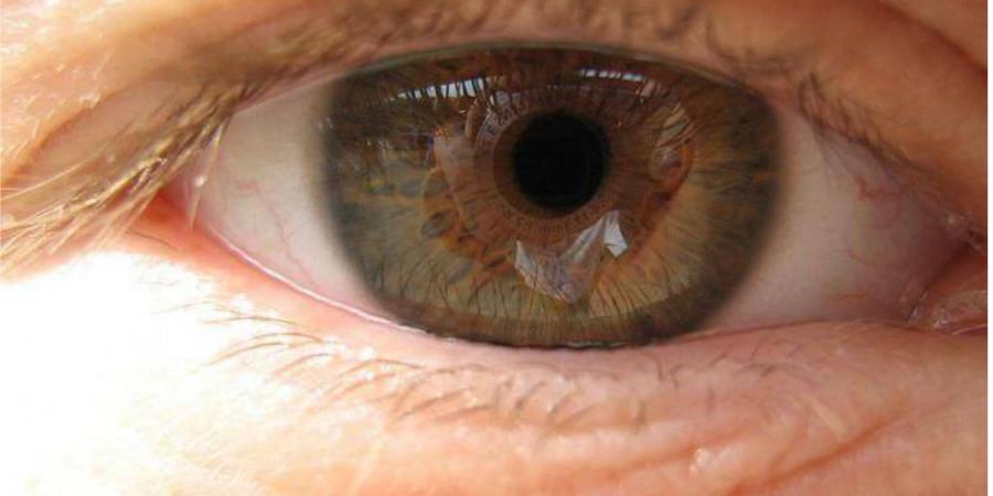 что такое вмд глаз и его симптомы