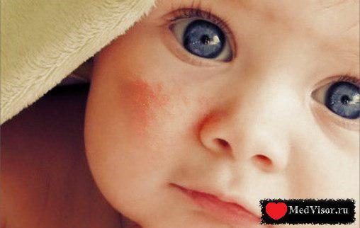 потница у ребенка и её лечение