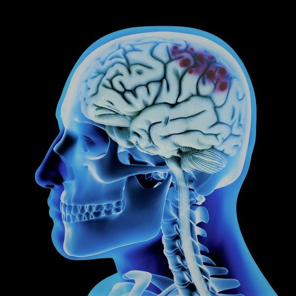 Картинка анонса новости Обнаружены повреждения головного мозга у выживших в холокосте