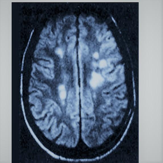 Картинка анонса статьи Рассеянный склероз: причины заболевания